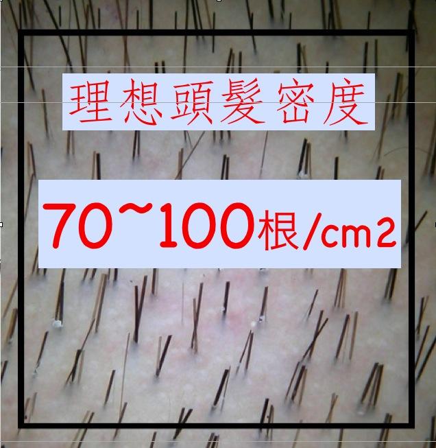 理想頭髮密度 2013-06-09 上午10.07.50
