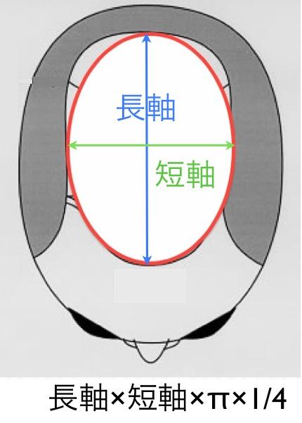禿頭面積計算 part II 橢圓形  2013-07-02 下午5.22.31