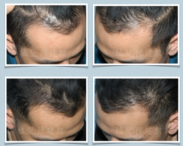 3 Months After Robotic Fue Welcome To The World Of Hair Transplant  E6 A4 8d E9 Ab Ae  E9 99 B3 E5 Bb Ba E5 8b B2
